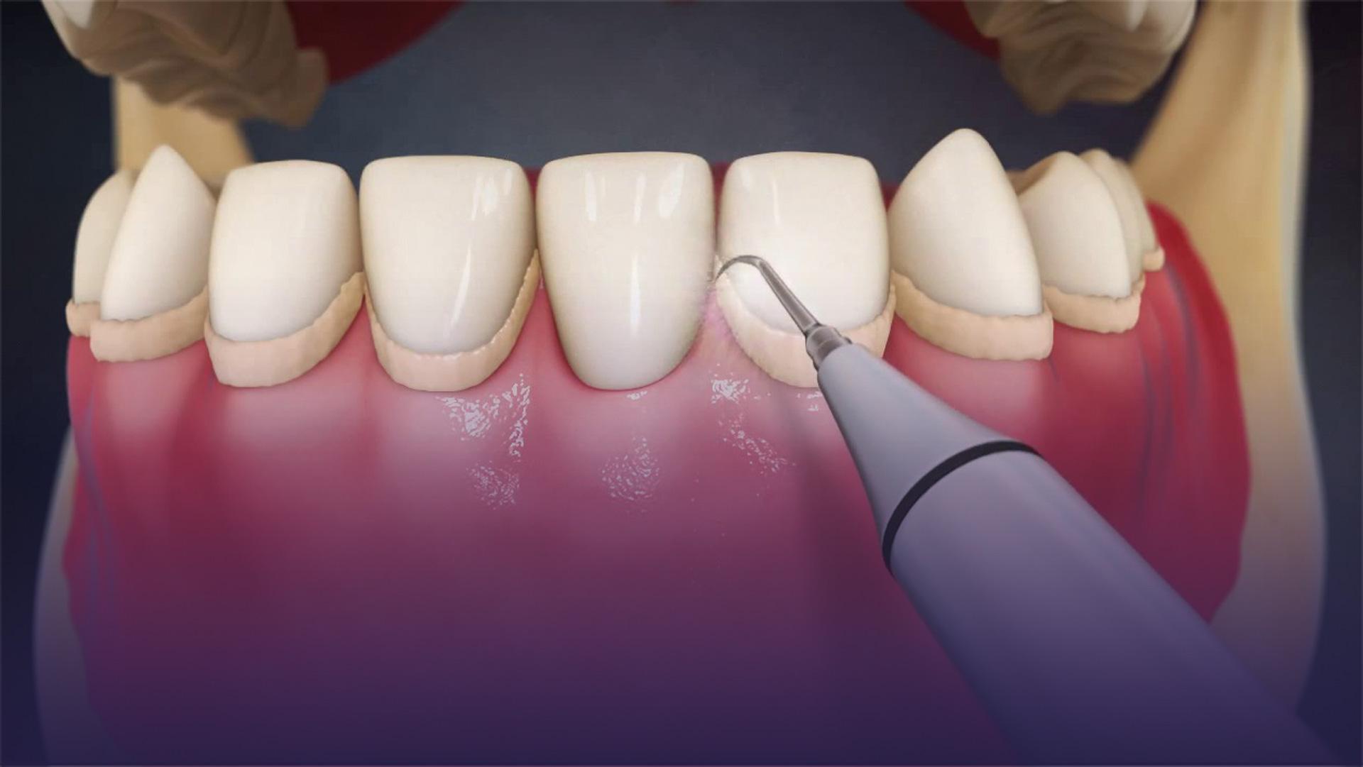 Diş Taşı Temizletmek Zararlı Mıdır…..?