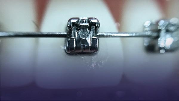 Diş Teli Tedavisi Ağız Bakımı