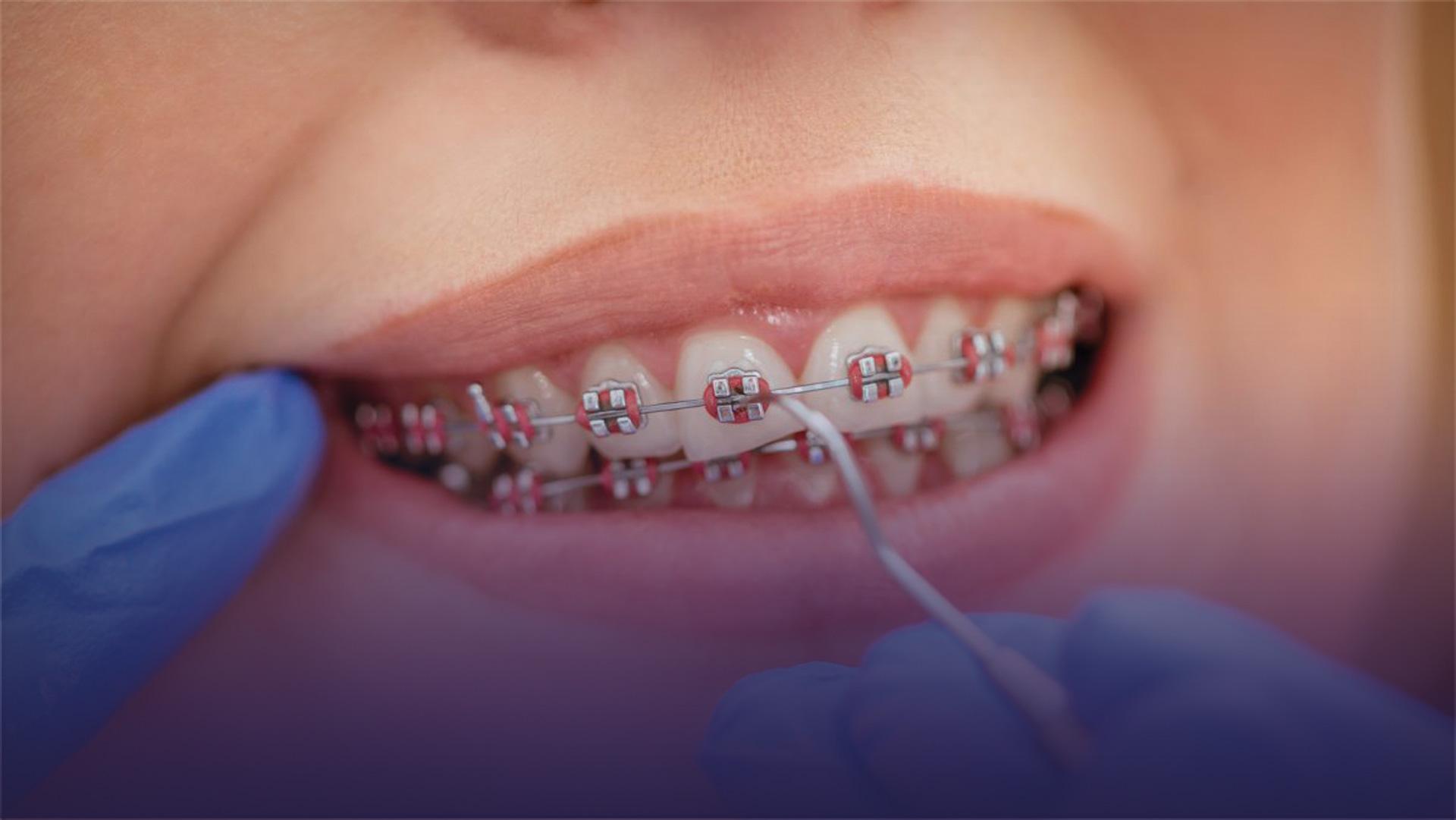 Ortodonti veya Diş Teli Tedavisini Kim Yapmalı?