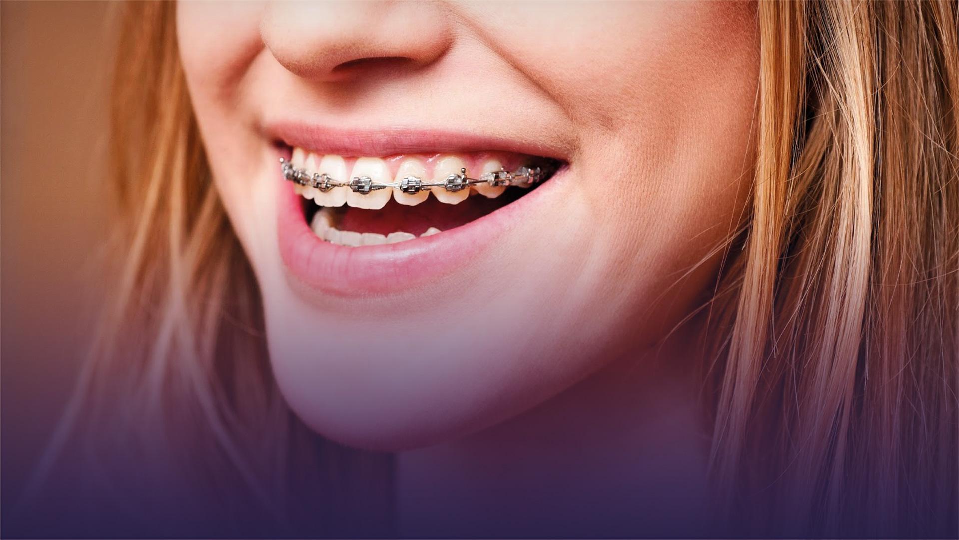 Ortodontik Tedavi (Diş Teli) Pahalı mı….?