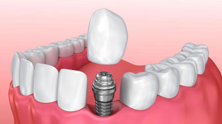implant tedavisi nedir